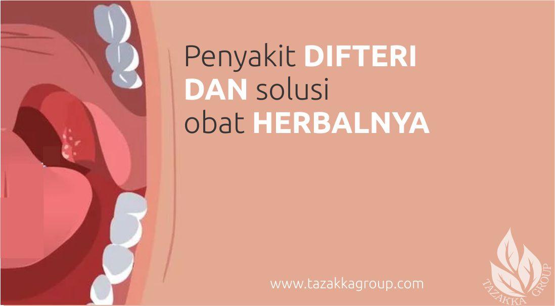 foto gambar artikel website herbal sukoharjo tazakka informasi seputar penyait gejala ciri ciri penyebab difteri radang tenggorokan akut
